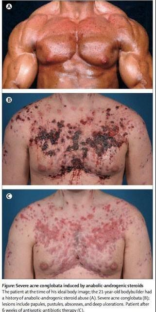 Severe acne induced by anabolic-androgenic steorids